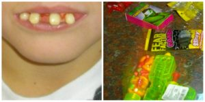 a child with fake hillbilly teeth and lots of candy
