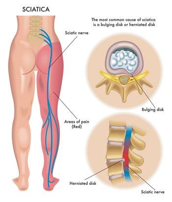 sciatica from running, sciatica explained